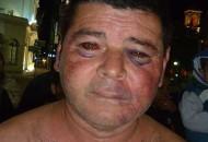 Las lesiones de López, el día después de la brutal agresión.