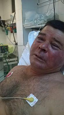 Jorge López, convaleciente tras las lesiones producidas por la Policía.